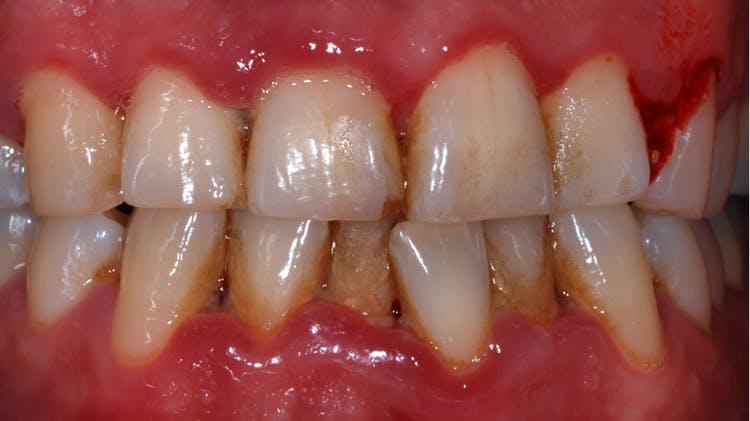 Nekrotizan ülseratif gingivit ve nekrotizan ülseratif periodontit