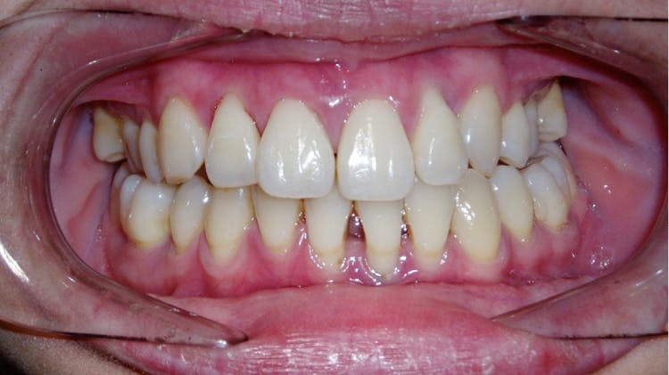 Agresif periodontit