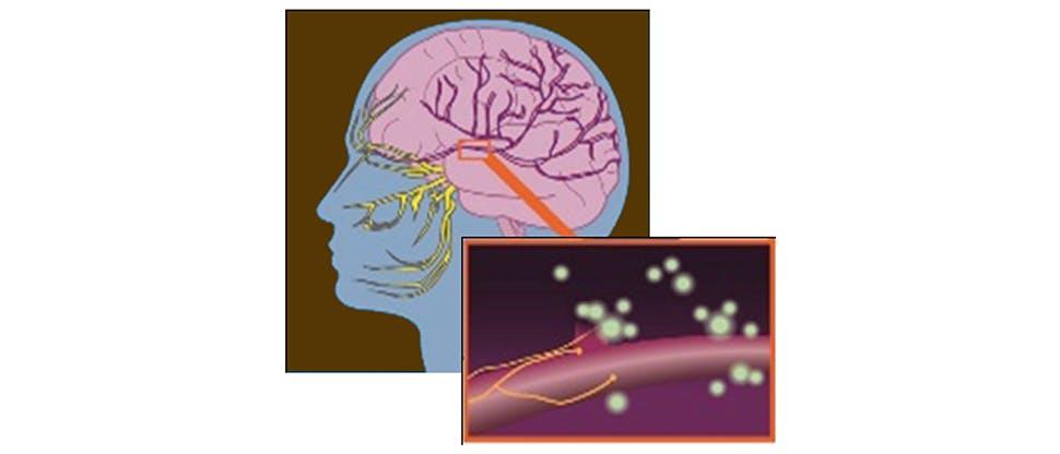 Trigeminal bölgede nöronların ateşlenmesi