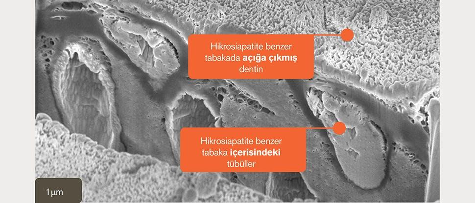 Hidroksiapatit benzeri tabakanın SEM görüntüsü