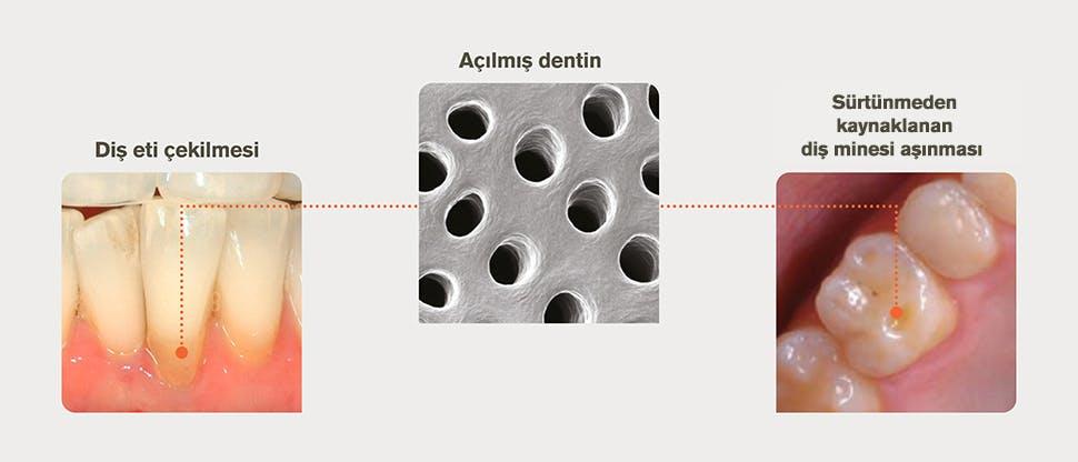 Dentin açığa çıkmasının nedenleri