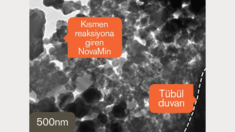 500 nm'de dentinin TEM görüntüsü