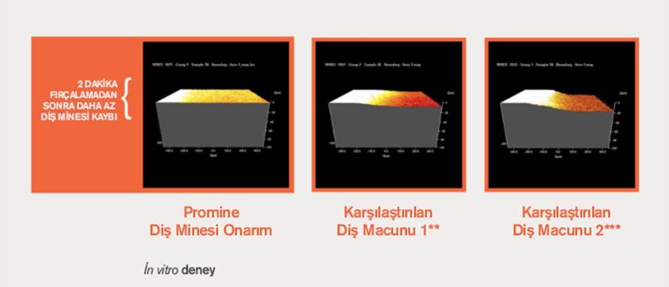 İnsan diş minesi örneklerinin 3 boyutlu profilometri (3DP) analizi