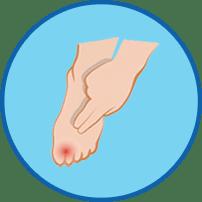 Finger auf Fuß Smybol