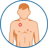 Mann mit Ringelflechte auf der Brust