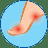 Entzündeter Fuß rundes Symbol