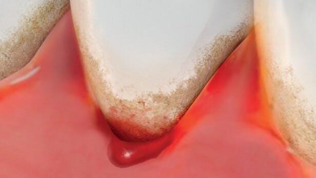 Beeld van gezond tandvlees