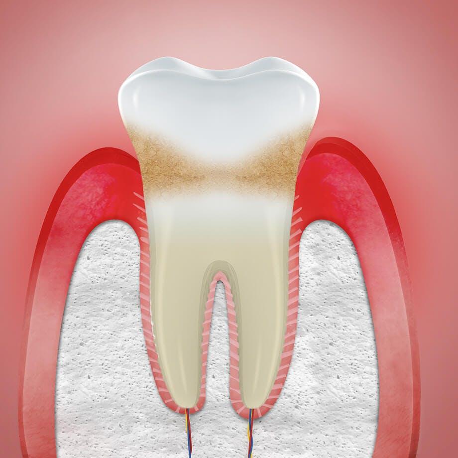 Ilustrace zobrazující oteklé dásně