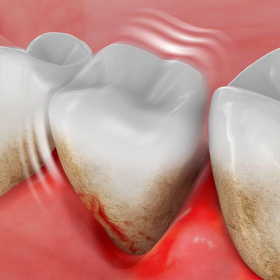 Ilustrace zobrazující ztrátu zubu
