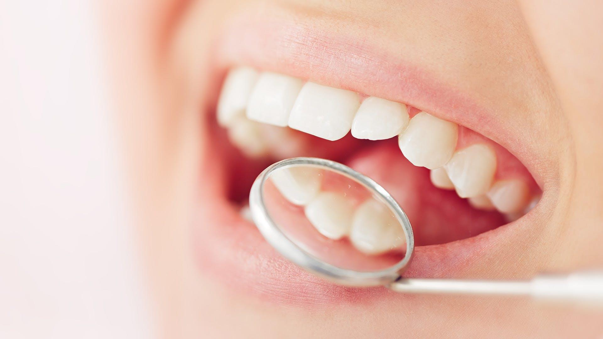 Otevřená ústa vyšetřovaná dentálním zrcátkem kvůli zubnímu sooru