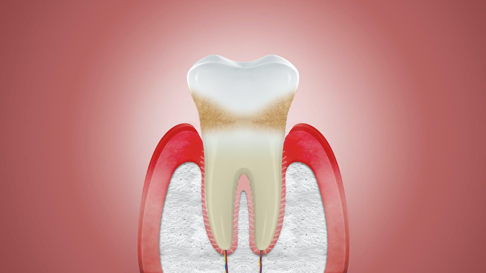 Ilustrace zobrazující ustupující dásně