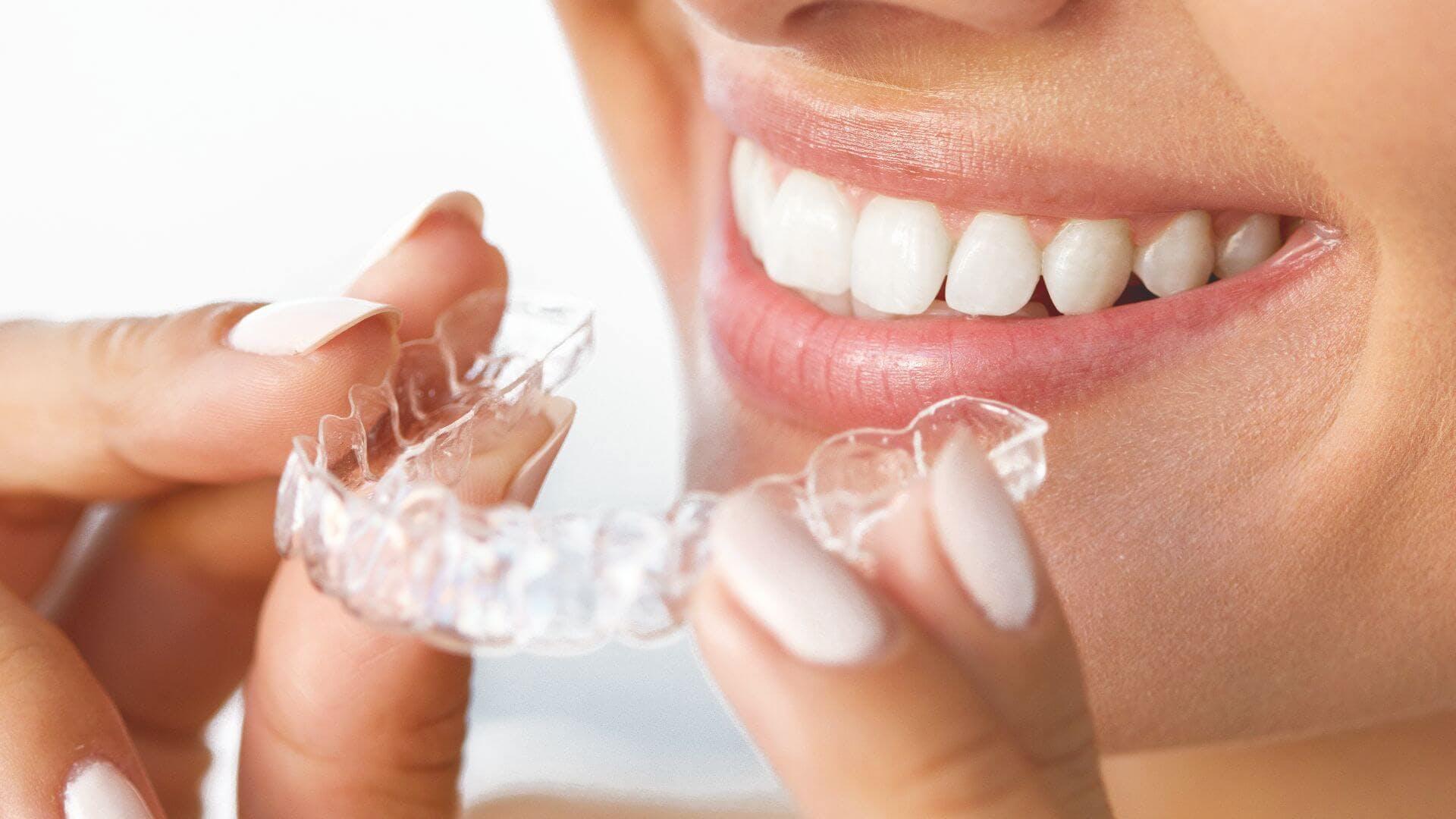 Nainen asettaa hammaskiskot suuhunsa