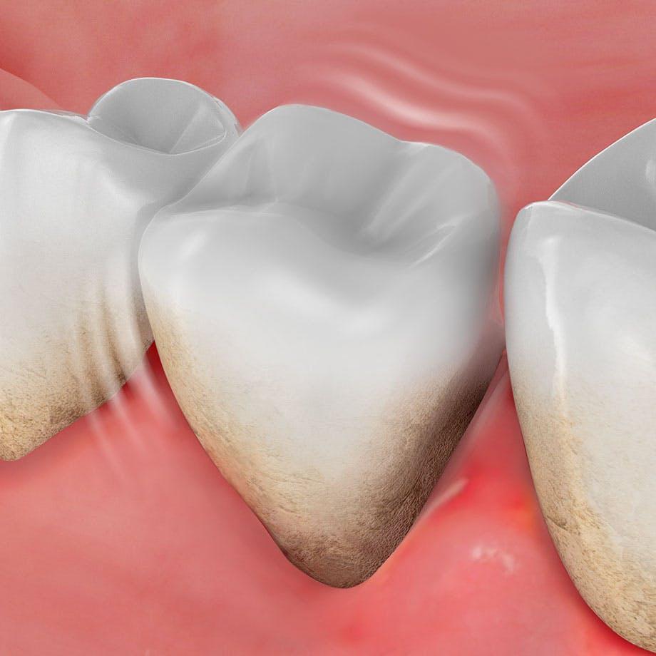 Immagine rappresentativa della peridita del dente