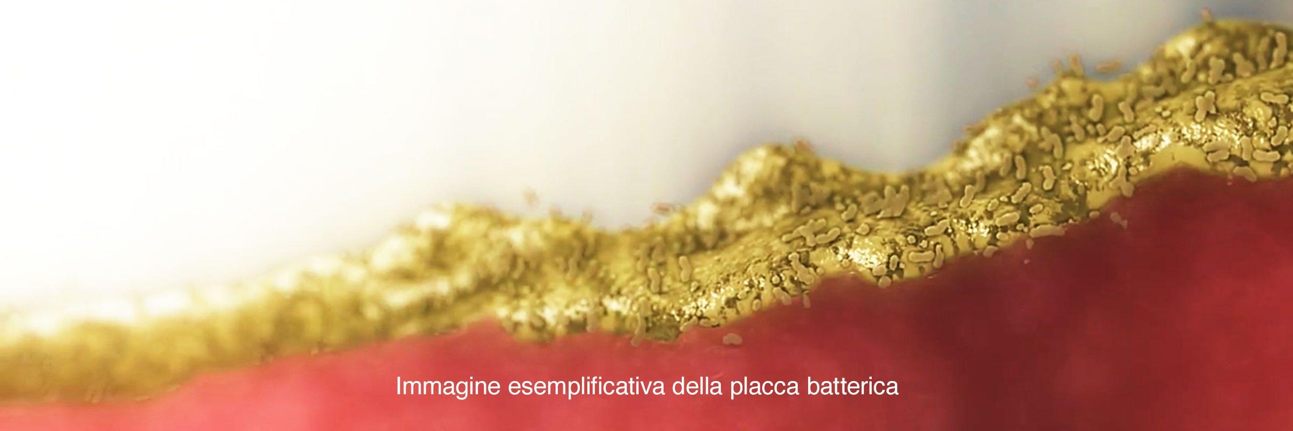Immagine rappresentativa dei batteri su bordo gengivale