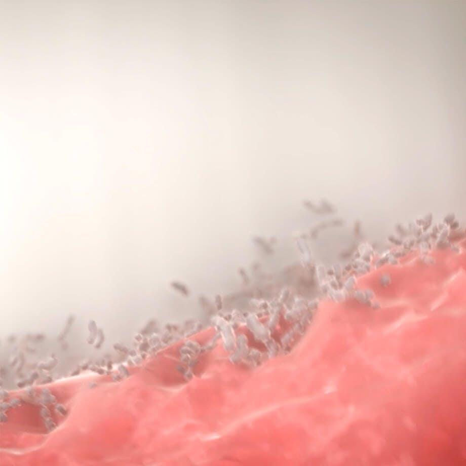 Dantenų ligų sukėlėjas: dantenų bakterijos