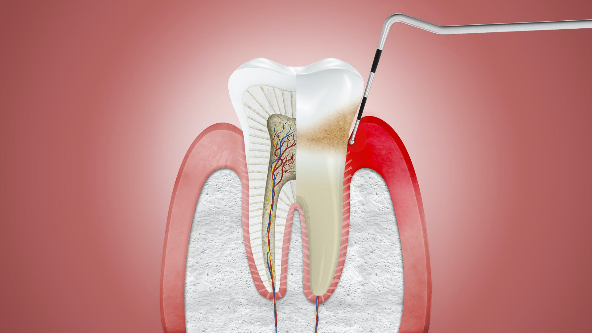 Illustration of gums affected by gingivitis, with dentist tool