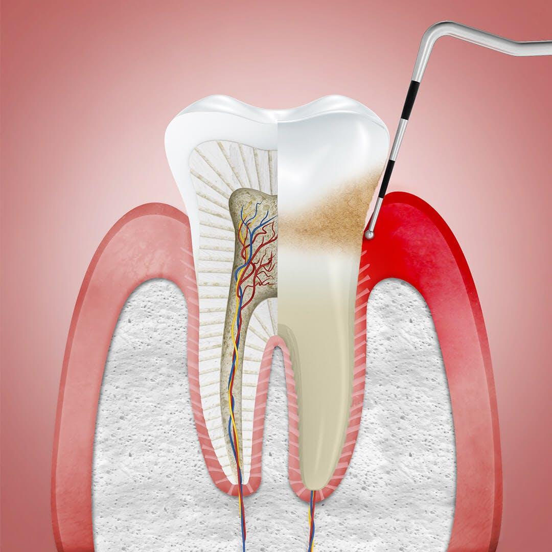 Şişmiş diş etleri