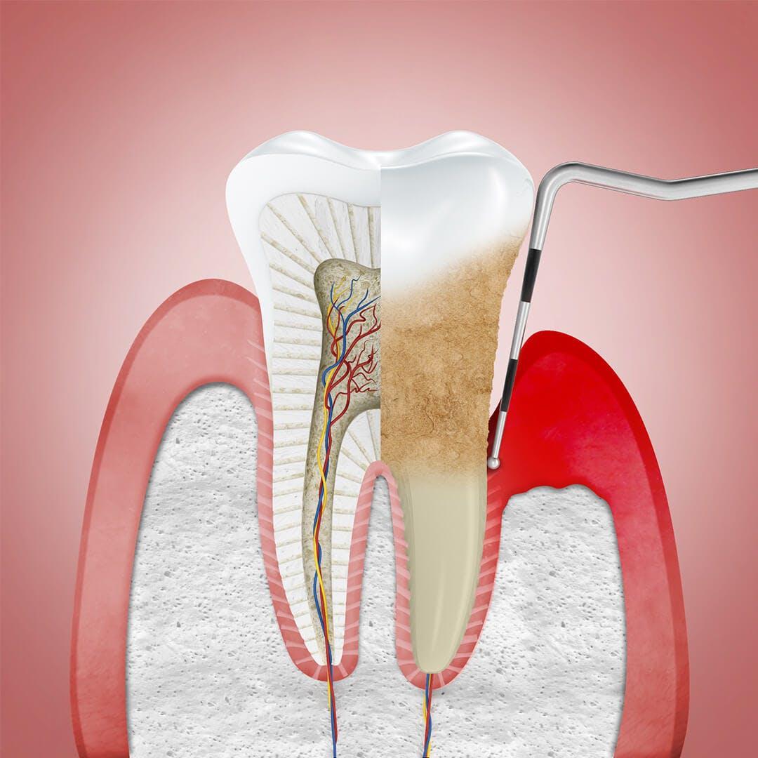 Gencives qui se rétractent et qui laissent apparaître la dent.