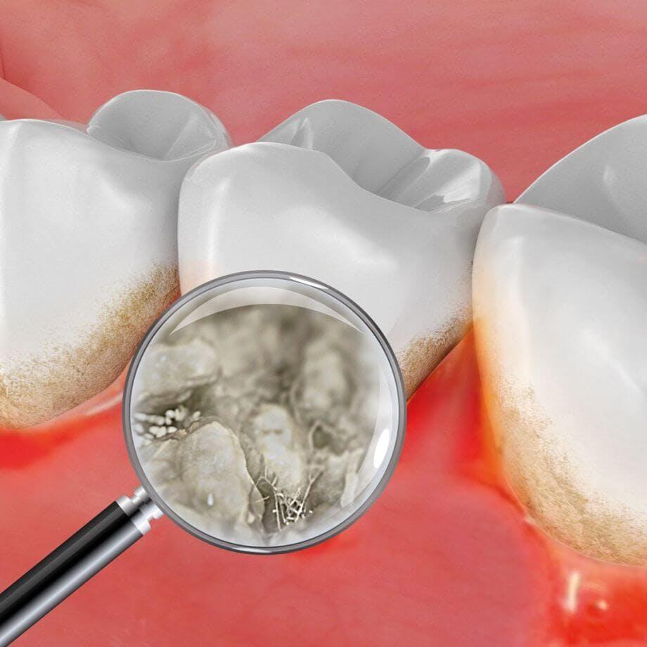 Abbildung von Bakterien zwischen dem Zahnfleisch, mit der Lupe vergrößert