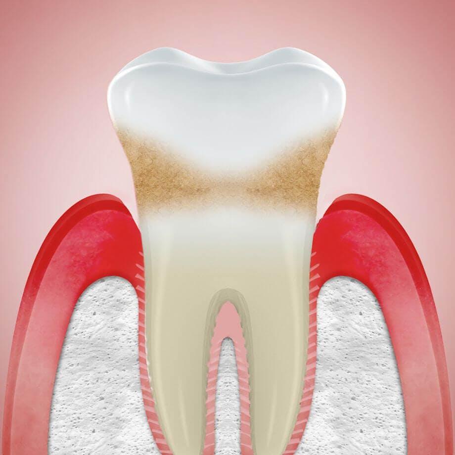 Abblidung Zahnfleischrückgang