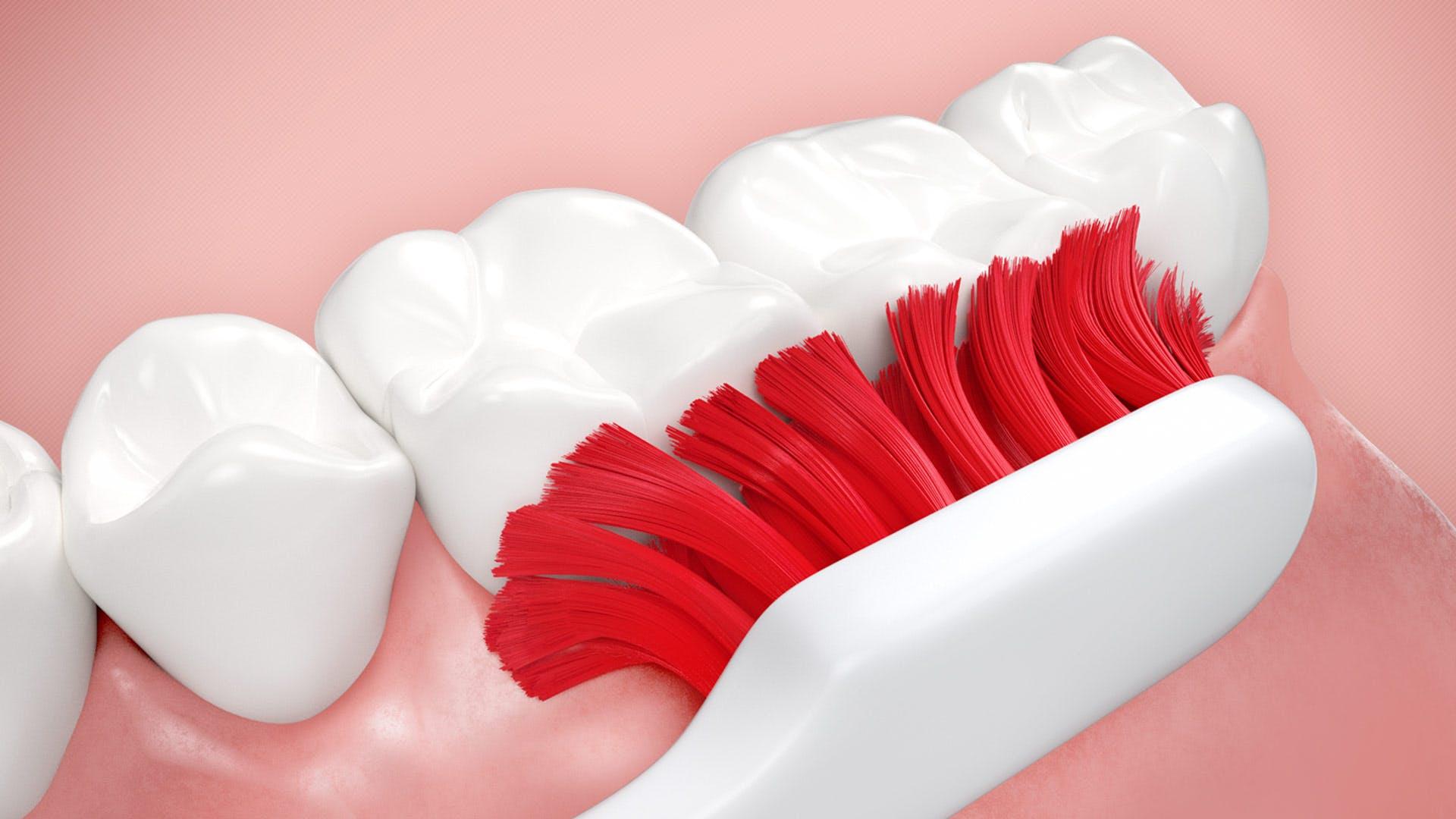 Cómo prevenir el sangrado de encías al cepillarse