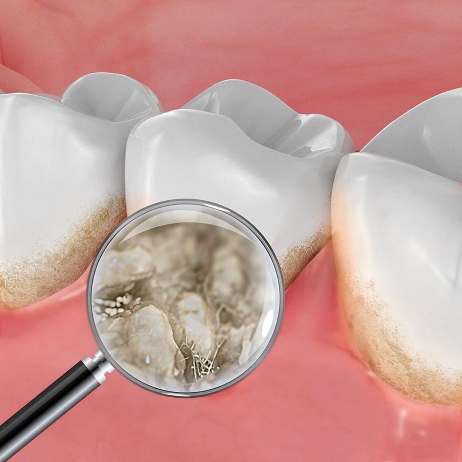 de gevolgen van tandplak