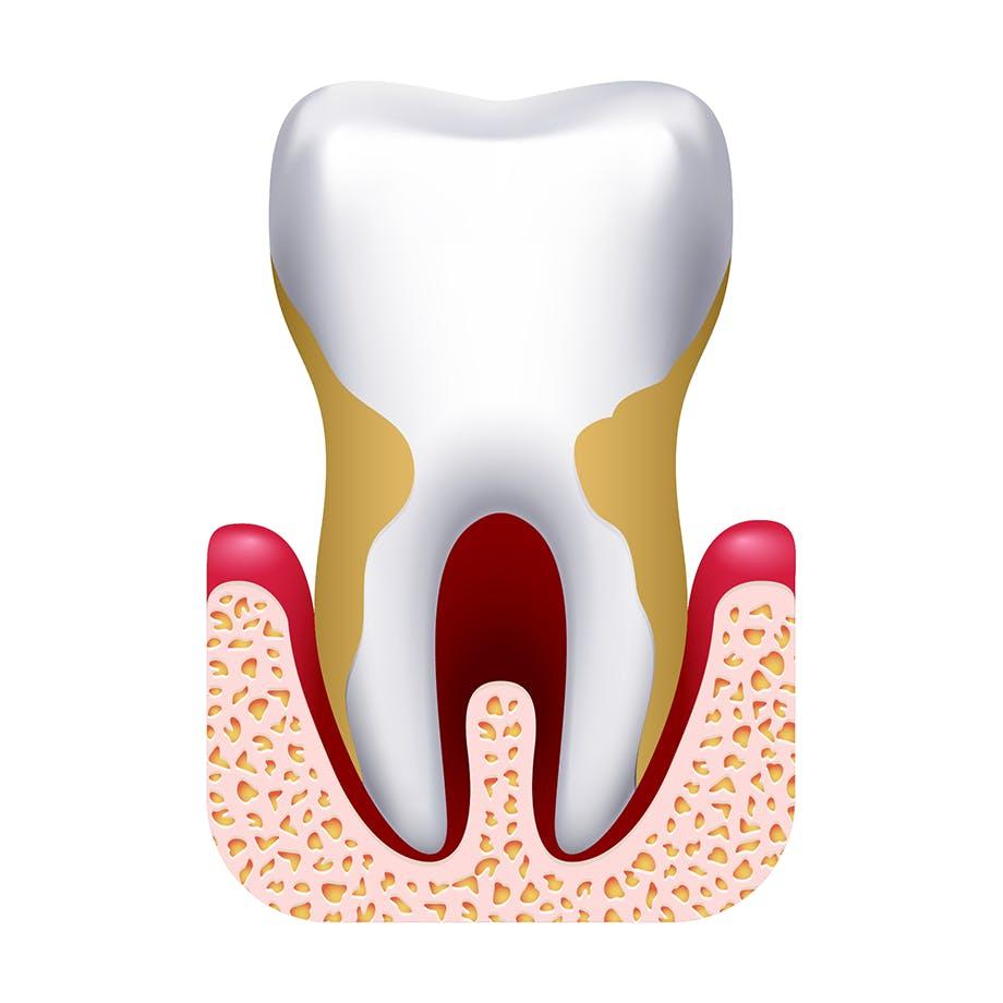 Diş kaybı