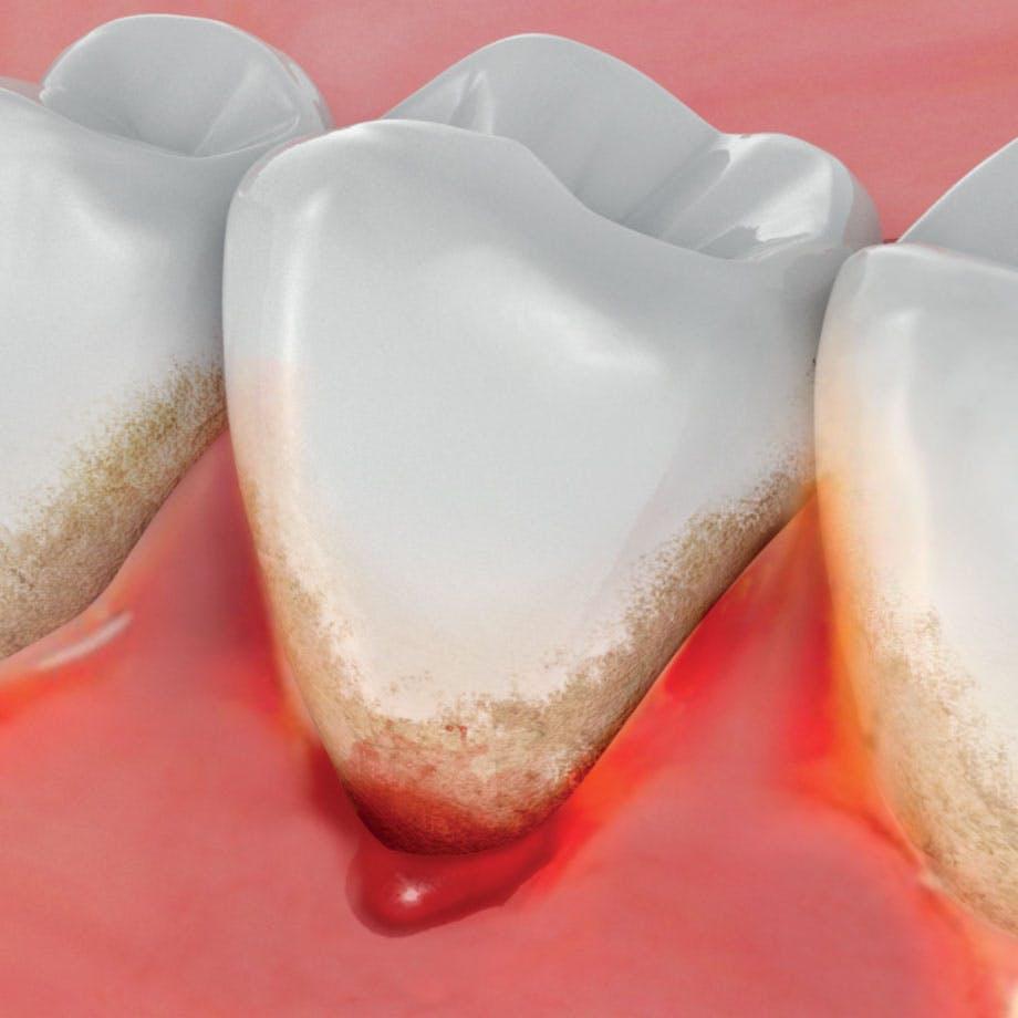牙齦流血的問題