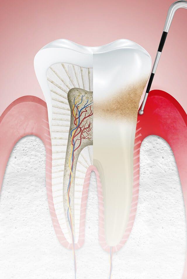 牙齦炎(牙周病)