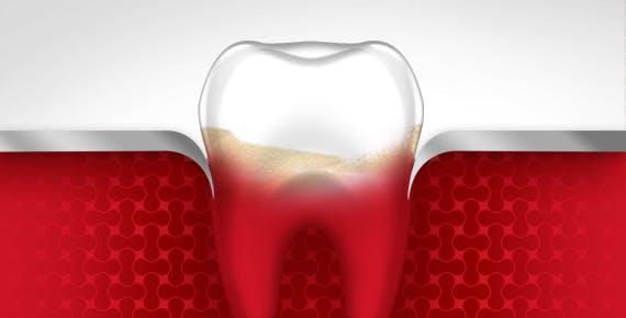 Sangrado de diente, Etapa dos