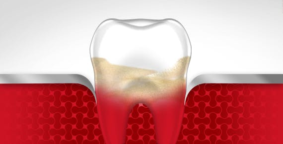 Sangrado de diente, Etapa tres