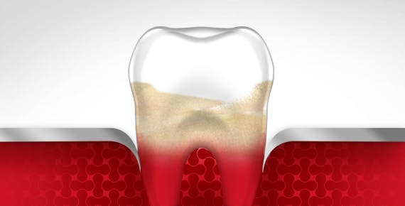 Sangrado de diente, Etapa cuatro