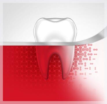 Sangrado de diente, Etapa uno