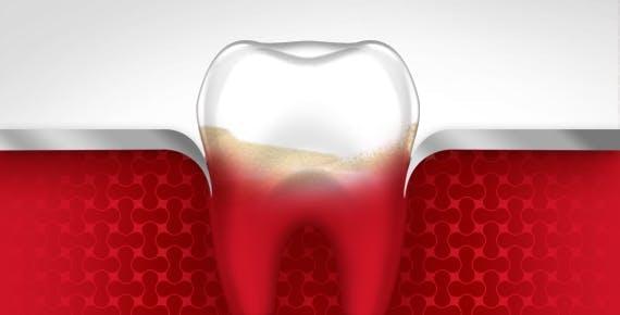 Bleeding Gums Tooth Gum Disease Stage 2 parodontax