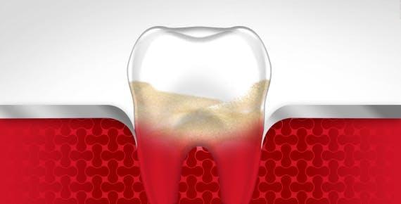 Bleeding Gums Tooth Gum Disease Stage 4 parodontax