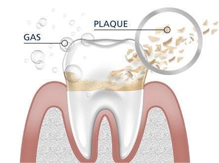 Teeth Cleaning parodontax