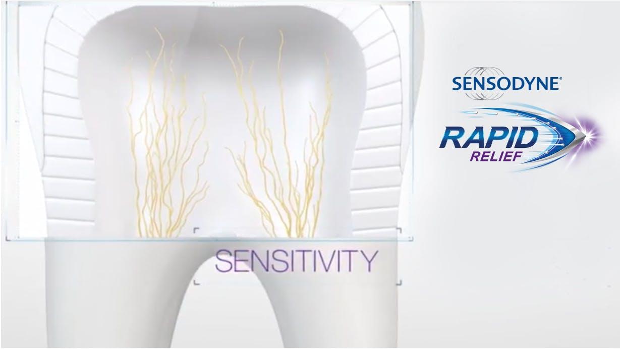 sensodyne rapid relief works