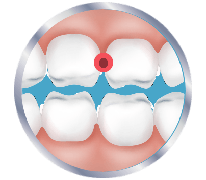 Pinpointing tooth pain icon