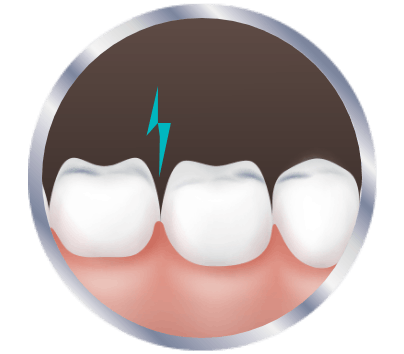 Experiencing tooth sensitivity icon