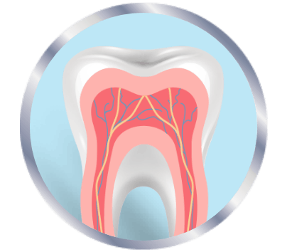 Inflammed nerves in teeth