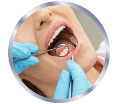 Woman opening her mouth for the dentist