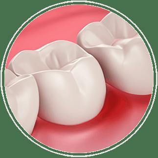 Zdraví dásní a citlivost