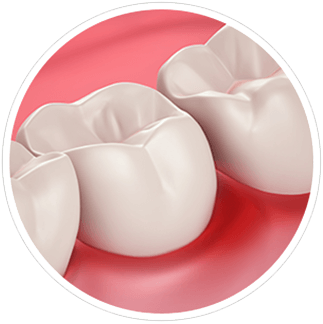 Υγιεινή Ούλων και Ευαισθησία