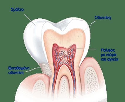 Τι προκαλεί Ευαισθησία στα Δόντια;