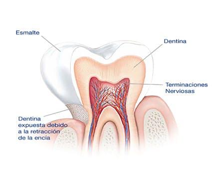 ¿Qué causa la sensibilidad dental?