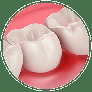 Salud de las encías y sensibilidad dental