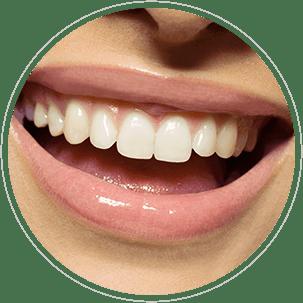 Wat zijn tanderosie symptomen en hoe kun je ze herkennen?