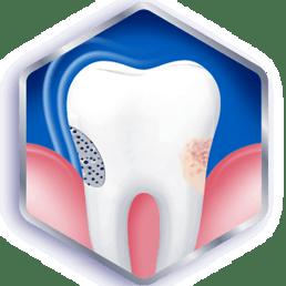 Inspection de vos dents et gencives
