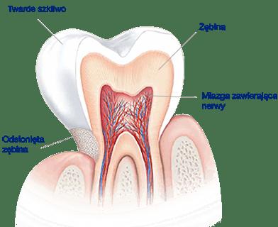 Co powoduje wrażliwość zębów?