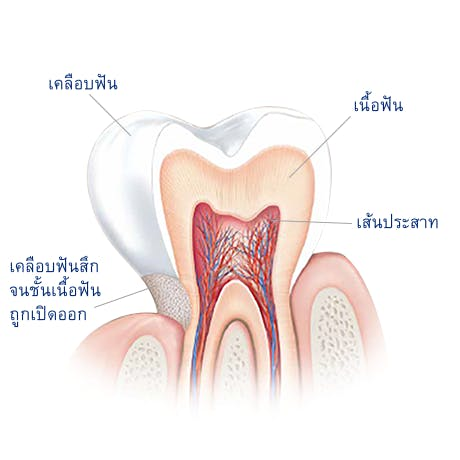 อะไรคือสาเหตุของการเสียวฟัน?